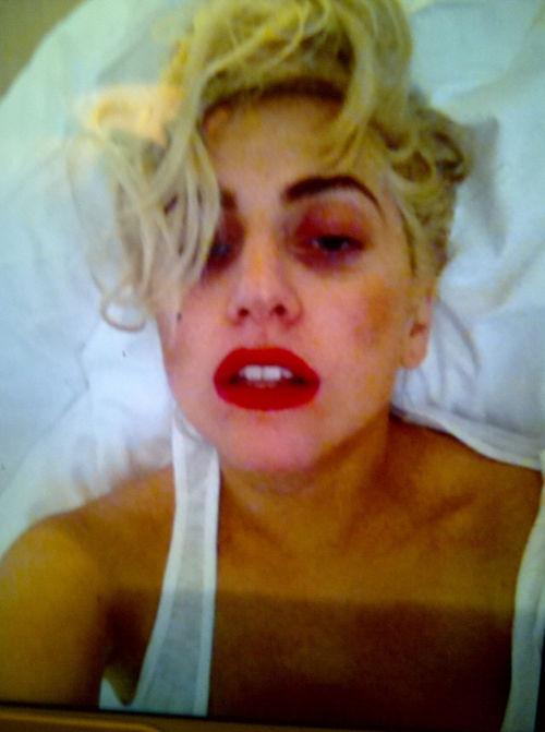 So schlimm sieht Lady GaGa derzeit aus