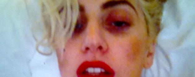 Lady GaGa mit blauem Auge