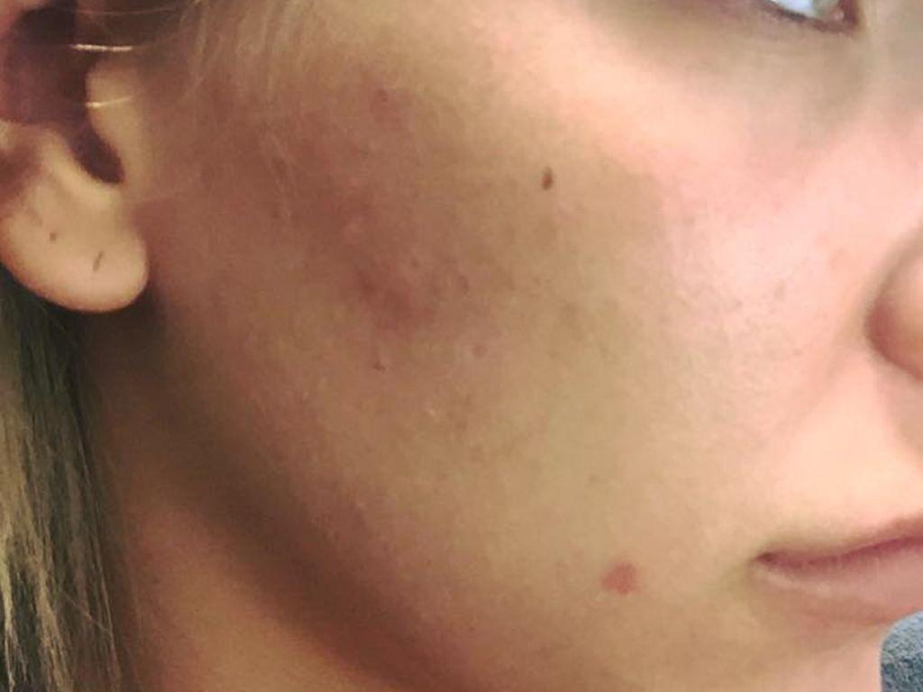 Vivien Konca zeigt ihre Hautunreinheiten