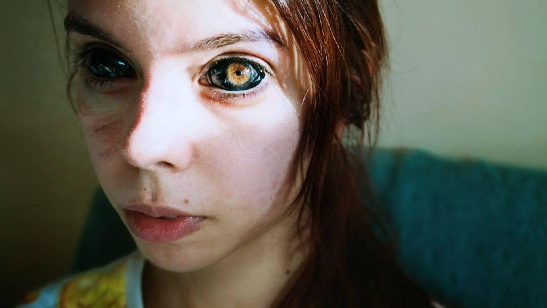 Dank Augen-Tattoos: 25-jährige Influencerin ist jetzt blind!