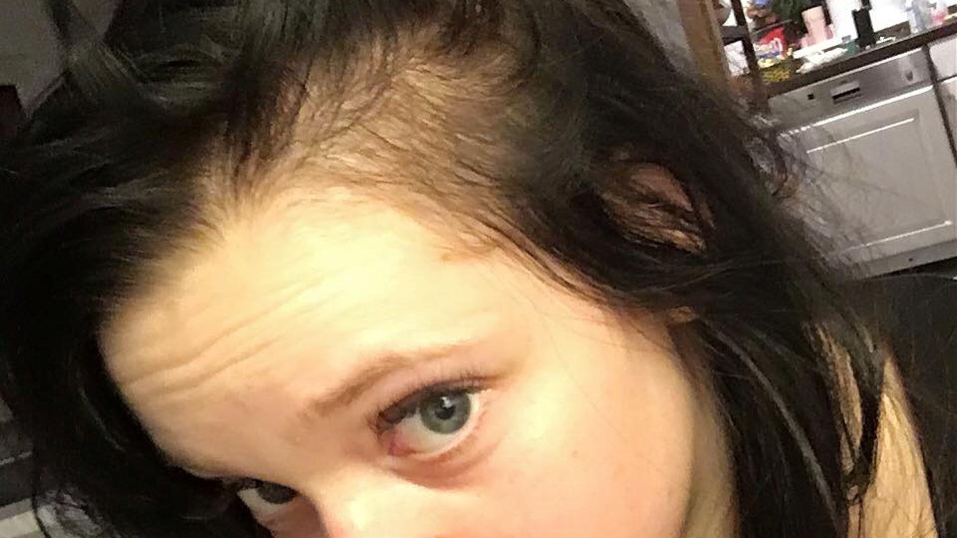 Baby Haare Fallen Aus