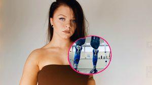 Angie verlor beide Beine – und ist jetzt ein Tik-Tok-Star