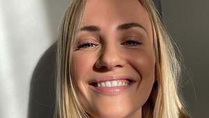Ania Niedieck spricht offen über ihre Beauty-Behandlungen