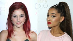 Brow-Lifting: Das ist der neue Beauty-Trend aus Hollywood!