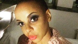 Bahati Venus mit Glatze