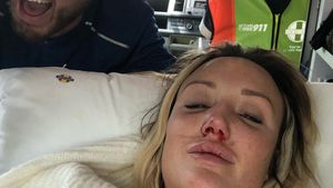 Blutiger Unfall: Charlotte Crosby musste ins Krankenhaus!