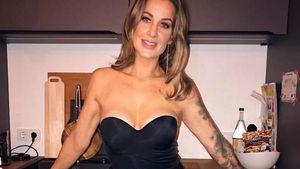 Darum spricht Charlotte Würdig ehrlich über Beauty-Eingriffe
