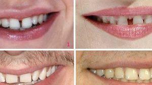 Auflösung: Die Zahnlücken gehören zu...