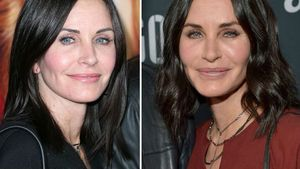 Zu oft beim Beauty-Doc? Courteney Cox total entstellt