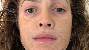 Autsch! Was ist denn mit Drew Barrymores Gesicht passiert?