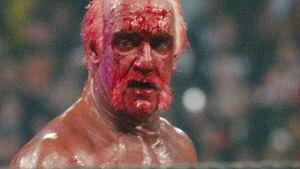 Boot in Blut gebadet: Hulk Hogan wieder verletzt!