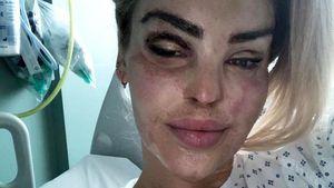 Fast 400 OPs: Säure-Opfer Katie Piper meldet sich zu Wort