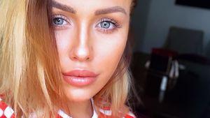 Nach drei Jahren: Kim Gloss' Lipfiller gehen nicht weg!