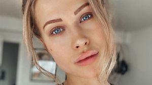 Heftige Botox-Unterstellungen: Das sagt Bachelor-Girl Leah