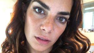 Zu viel Muttermilch: Lilli Hollunder muss ihre Brüste kühlen