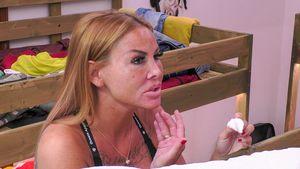 Deshalb spricht Lisha im Sommerhaus über ihre Hautkrankheit