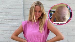 "Chemotherapie: ""Anne with an E""-Miranda zeigt Haarausfall"