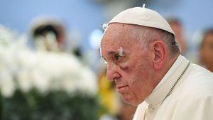 Blaues Auge: Papst Franziskus verletzt sich in Kolumbien!
