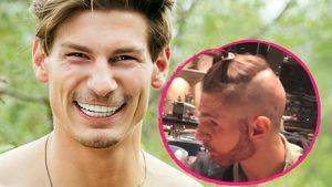 "Beauty-OP: ""Love Island""-Philipp macht Barttransplantation"