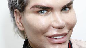 Beauty-Wahn: Real-Life-Ken Rodrigo mit neuen Augenbrauen!