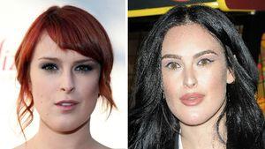 Kylie-Jenner-Lips: Rumer Willis hat jetzt einen Knutschmund!