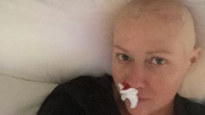 Blutende Nase: Shannen Doherty teilt ungeschönte Krebsfotos