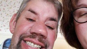 Nach Zahn-OP: Bauer Uwe zeigt stolz seine neuen Zähne!