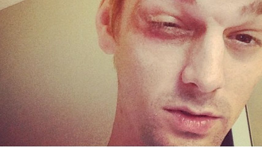 Aaron Carter von NKOTB-Fans verprügelt?