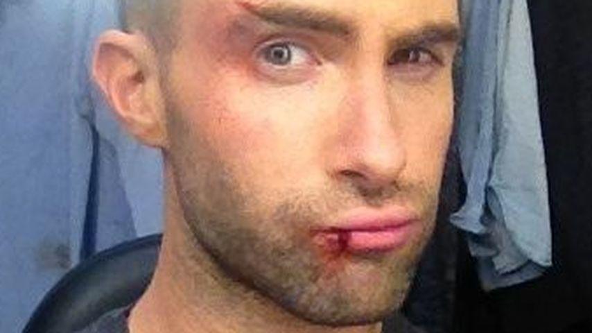 Adam Levine: Wer verpasste ihm die blutige Lippe?