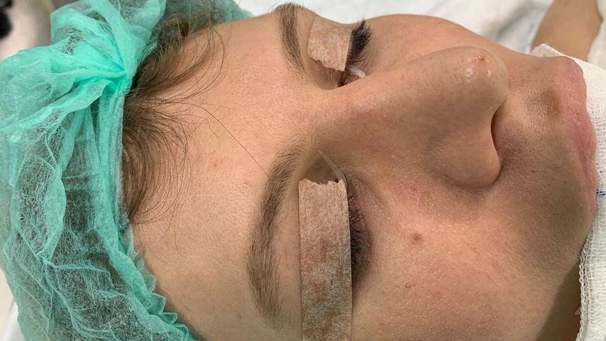 Arielle Rippegather vor ihrer Nasen-OP
