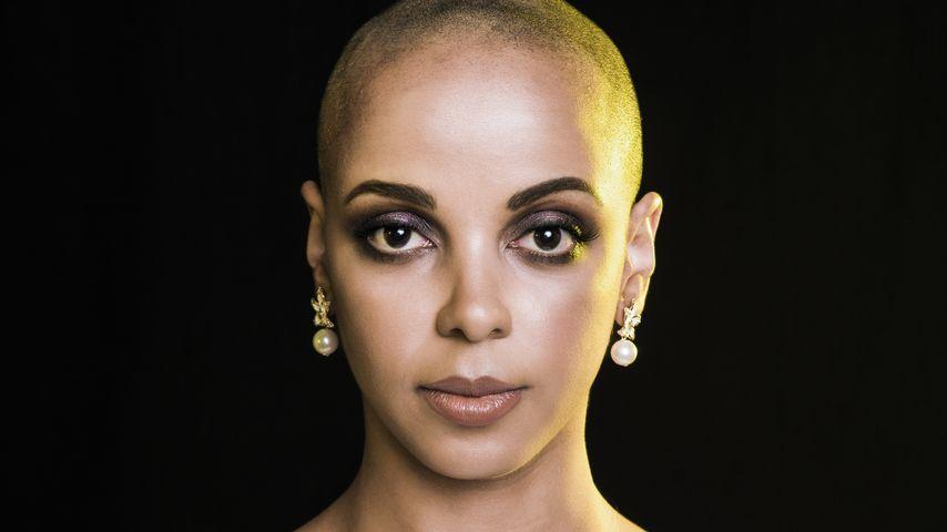Radikale Charity-Aktion: Bahati Venus trägt jetzt Glatze!