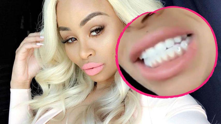 Diamanten auf den Zähnen: Blac Chynas Beißer funkeln jetzt