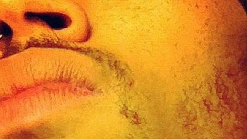 Chris Brown: Nach Schlägerei mit Drake verletzt!