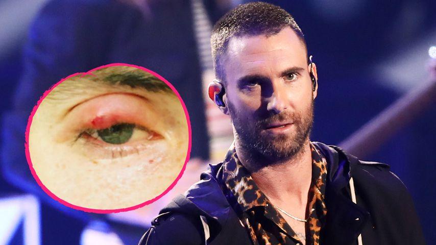 Autsch-Auge! Adam Levine zeigt fiese Verletzung im Gesicht