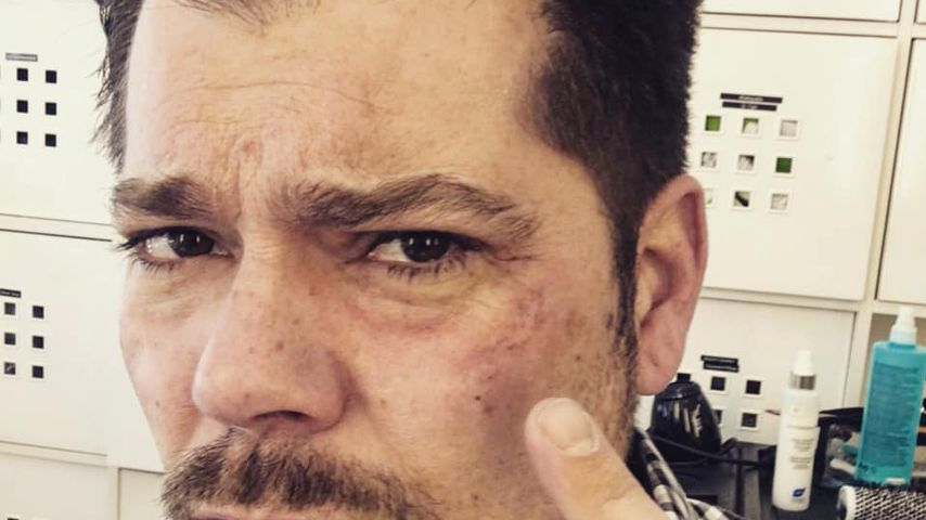 Blaues Auge: Was ist mit GZSZ-Daniel Fehlow passiert?