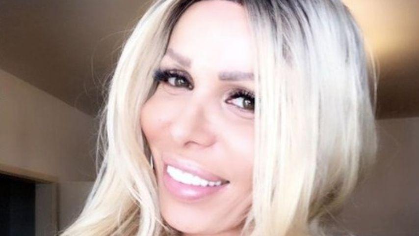 Völlig aufgelöst: Trans-Frau Edona James hat Brustkrebs!
