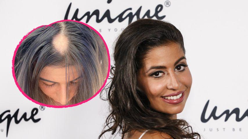 Bachelor-Star Eva Benetatou offen: Sie leidet an Haarausfall