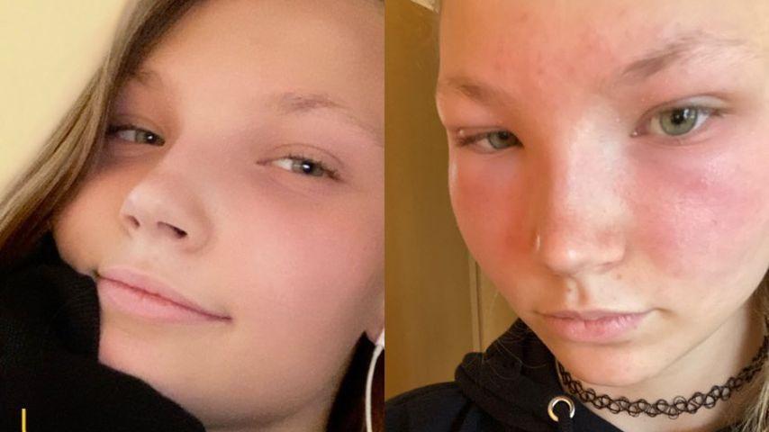 GNTM-Romy ohne und mit allergischer Reaktion im Gesicht