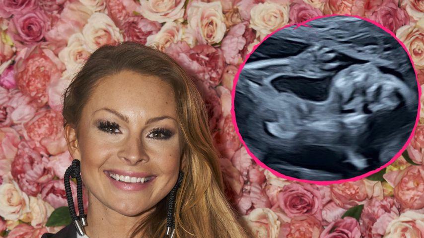 Wie süß! Jana Schölermann teilt niedliches Ultraschallbild