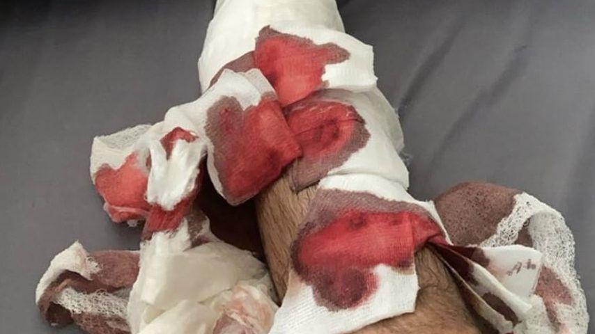 Juan Manuel Correas Bein nach seinem Unfall
