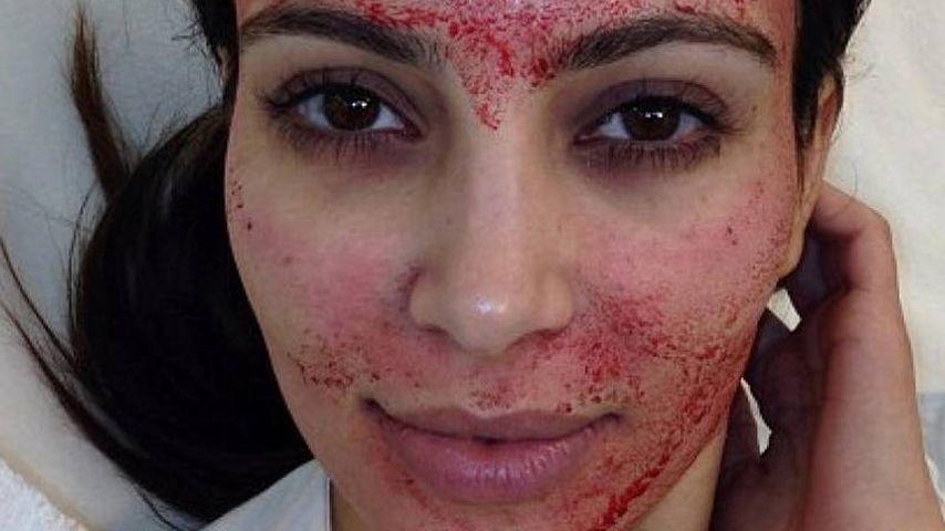 Kim Kardashian nach einem Vampir-Lifting
