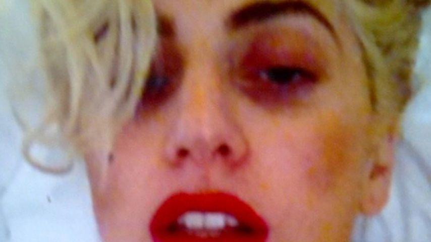 Übel zugerichtet: So schlimm sieht Lady GaGa aus