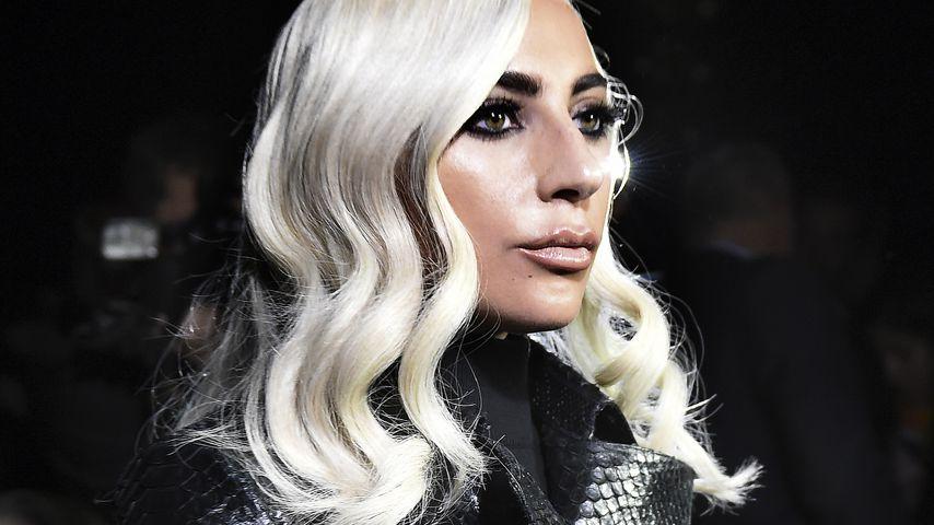 OP für den Erfolg? Lady Gaga sollte Nase erneuern lassen!