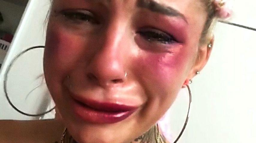 """DSDS-Leoni über häusliche Gewalt: """"Ich dachte, ich wäre tot"""""""