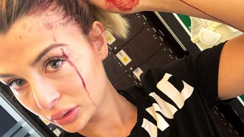 Nach blutigem Gym-Unfall: Lisa G. gibt ihren Fans Entwarnung