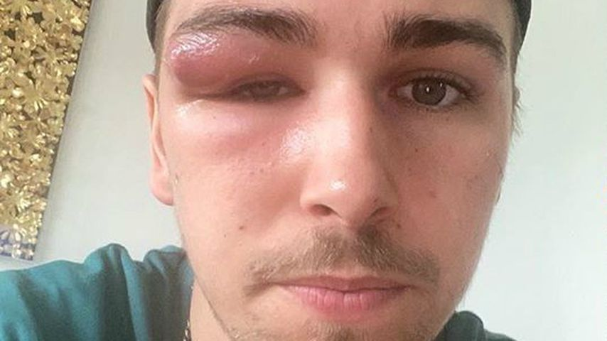 Zyste an Augenbraue: Ex-BTN-Star Matze Höhn total entstellt