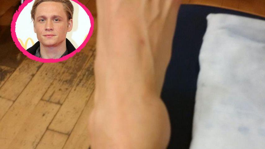 Autsch! Matthias Schweighöfer zeigt fiese Fuß-Verletzung