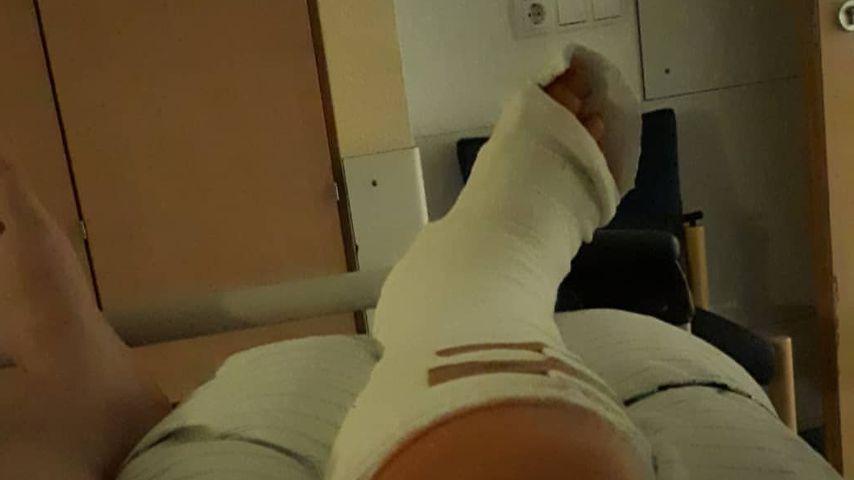 Michael Imhof nach seinem schweren Hoverboard-Unfall