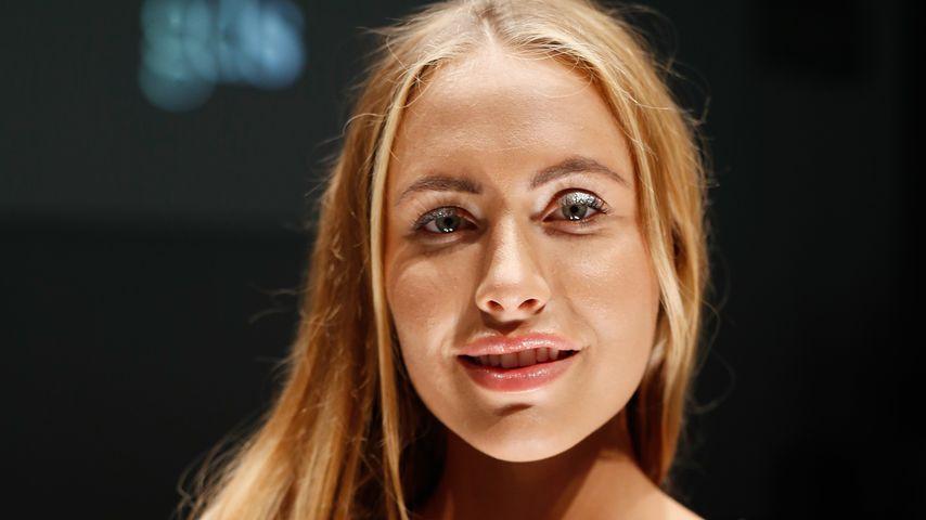 Alena Gerber stellt klar: Beauty-OPs gehen gar nicht!