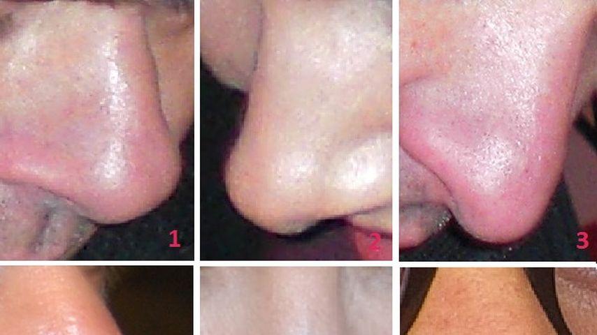 Auflösung: Wem gehört welche Nase?